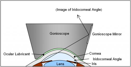 Gonioscopy Lectures videos attachment.php?attachmentid=160&stc=1&d=1430602856