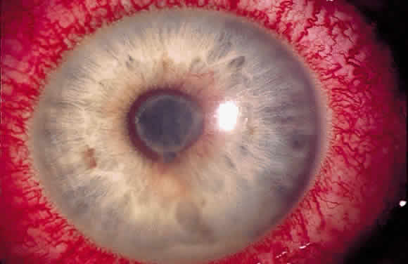 Uveitis Classification, Symptoms, Signs attachment.php?attachmentid=363&stc=1&d=1435953353