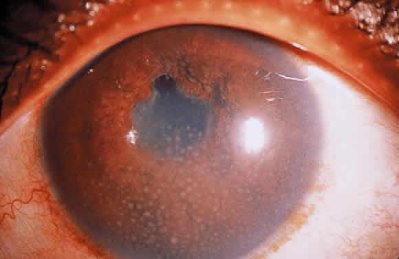 Uveitis Classification, Symptoms, Signs attachment.php?attachmentid=365&stc=1&d=1435953415