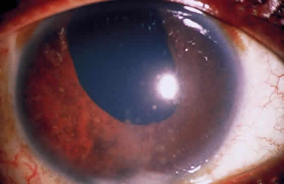 Uveitis Classification, Symptoms, Signs attachment.php?attachmentid=366&stc=1&d=1435953449