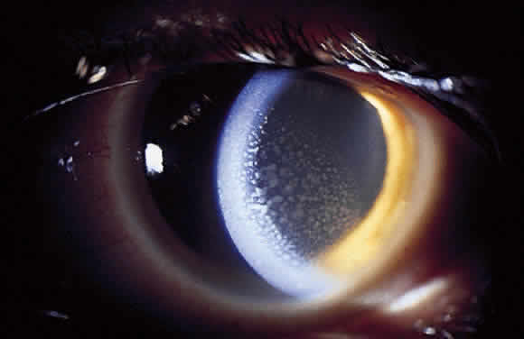 Uveitis Classification, Symptoms, Signs attachment.php?attachmentid=367&stc=1&d=1435953482