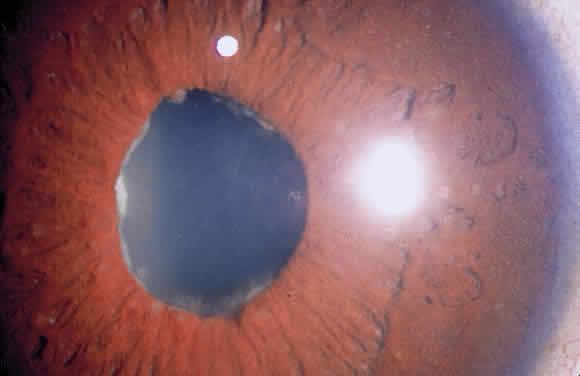 Uveitis Classification, Symptoms, Signs attachment.php?attachmentid=369&stc=1&d=1435953643