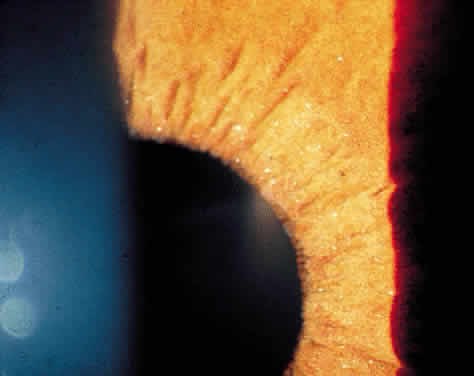 Uveitis Classification, Symptoms, Signs attachment.php?attachmentid=371&stc=1&d=1435953723