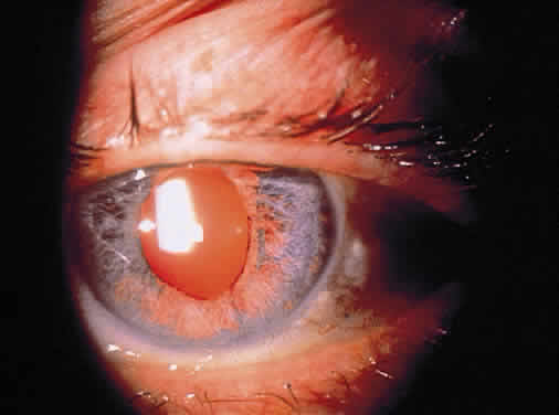 Uveitis Classification, Symptoms, Signs attachment.php?attachmentid=372&stc=1&d=1435953762