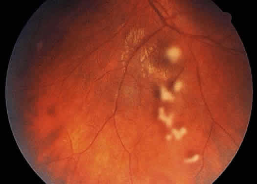 Uveitis Classification, Symptoms, Signs attachment.php?attachmentid=373&stc=1&d=1435953803