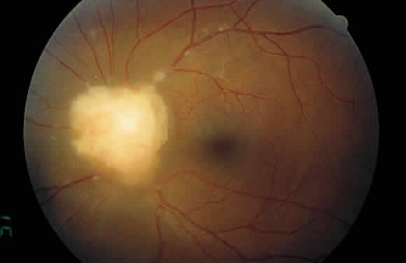 Uveitis Classification, Symptoms, Signs attachment.php?attachmentid=374&stc=1&d=1435953839
