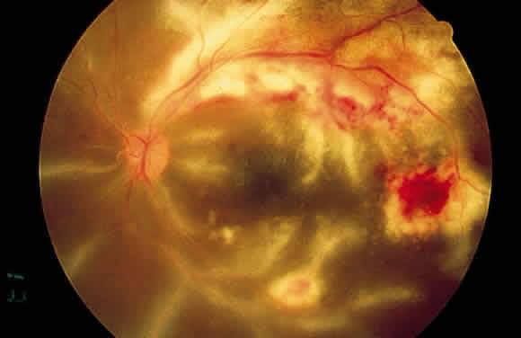 Uveitis Classification, Symptoms, Signs attachment.php?attachmentid=375&stc=1&d=1435953871