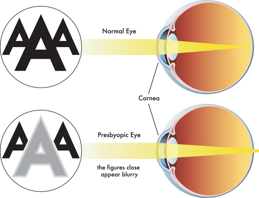 Correction presbyopia attachment.php?attachmentid=3150&d=1496405455
