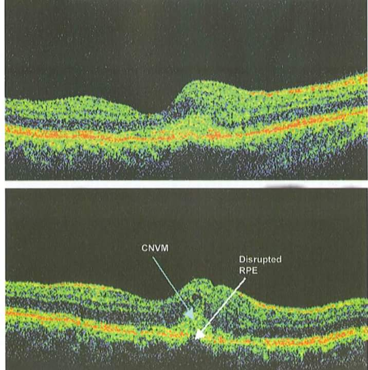 Optical coherence tomography OCT) attachment.php?attachmentid=3447&d=1511425699