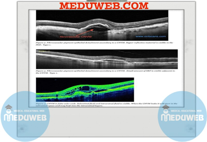 Choroidal Neovascular Membrane (CNVM) attachment.php?attachmentid=3451&d=1512375604