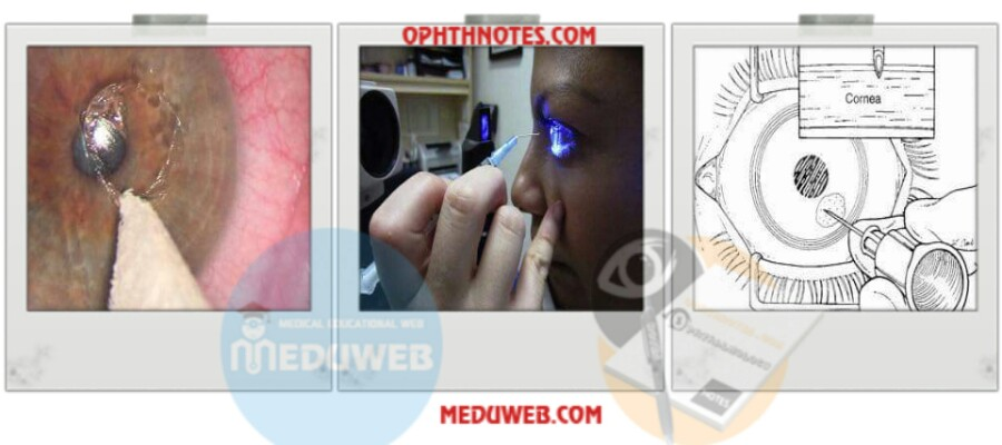 Recurrent corneal erosion syndrome (RCES) attachment.php?attachmentid=3461&d=1512899126