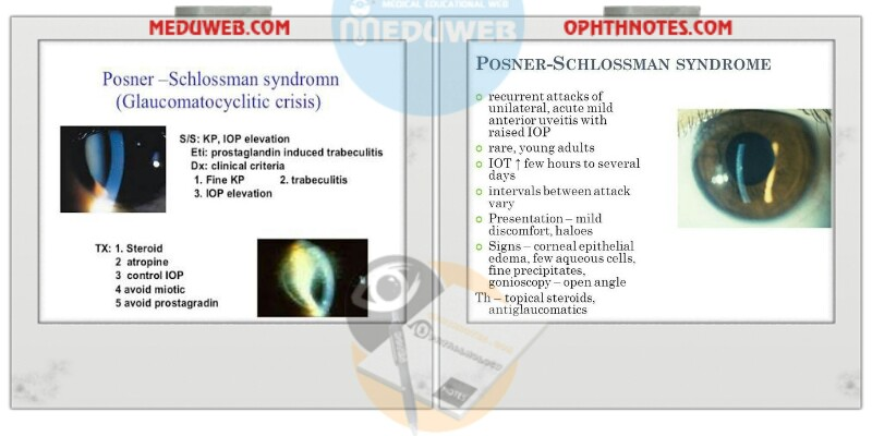 Glaucomatocyclitic crisis Posner- schlozman syndrome attachment.php?attachmentid=3471&d=1513500591
