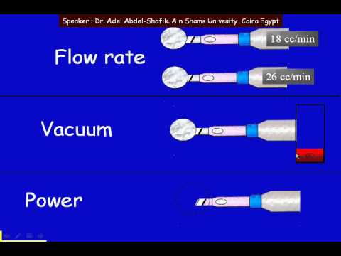 Phacodynamics:pedal positions, flow rate vacuum attachment.php?attachmentid=208&stc=1&d=1434523642