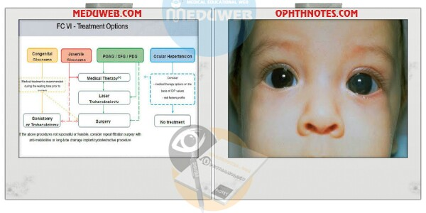 Medical treatment pediatric glaucomas attachment.php?attachmentid=3287&d=1507308060