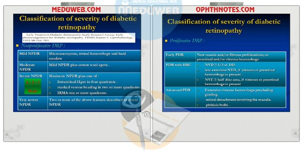 Classification Diabetic retinopathy attachment.php?attachmentid=3303&d=1507710897