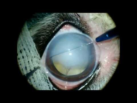 Gundersen Flap severe corneal edema attachment.php?attachmentid=3357&d=1509730706