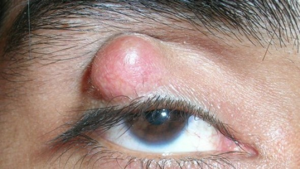 Chalazion (Diagnosis Treatment) attachment.php?attachmentid=357&stc=1&d=1435951539