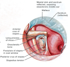 Otosclerosis Stapedectomy pictures Atlas attachment.php?s=1008f426671f0f7f5bcf58b809c2023f&attachmentid=1858&d=1441389857