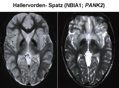 Hallervorden-Spatz case pictures NEURORADIOLOGY ATLAS attachment.php?s=23c25e7d255b226e7d428805504ff2a8&attachmentid=1537&d=1440445049