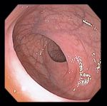 Normal Colon Ileum Pictures Atlas attachment.php?s=2c50b2f1ff079d054243c7e64337c6bf&attachmentid=2265&d=1442519707