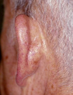 Excision Auricular Squamous Cell Carcinoma attachment.php?s=4ccd2227ecbf38b499c54efd034d6e47&attachmentid=1841&d=1441384990