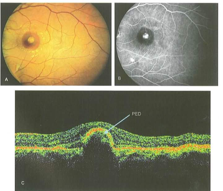 Optical coherence tomography OCT) attachment.php?s=51331ec6389592c60f0b510a4fafcb2f&attachmentid=3448&d=1511425856