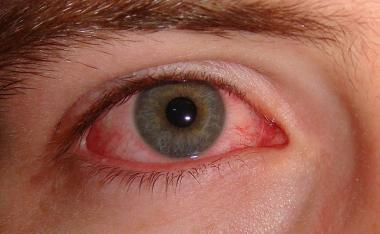 Conjunctivitis, Adenoviral picture Pediatric Atlas attachment.php?s=58ac1cb28d03d93f3cb5d6a504be3e65&attachmentid=1751&d=1441139256