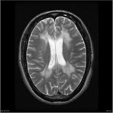 Metachromatic Leukodystrophy case pictures NEURORADIOLOGY attachment.php?s=75fd3053c107a59c2aba346c107f32ee&attachmentid=1536&d=1440444470