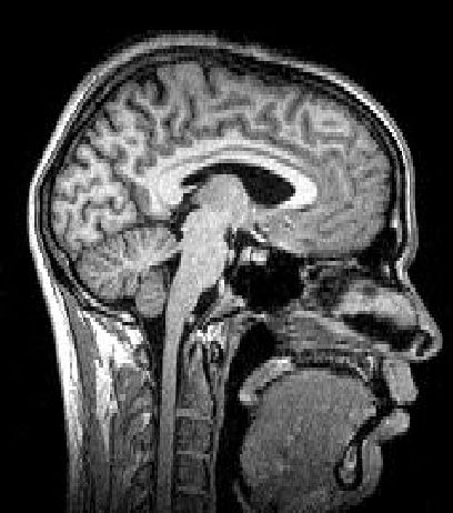 Brain death study case pictures attachment.php?s=95748b1f0036c240329d29d6eb2d447d&attachmentid=1521&d=1440248313