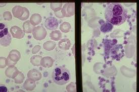Megathrombocyte, EDTA anticoagulated blood, picture attachment.php?s=a743a6c6dc9942fc681a972ab12b911c&attachmentid=1442&d=1439749033