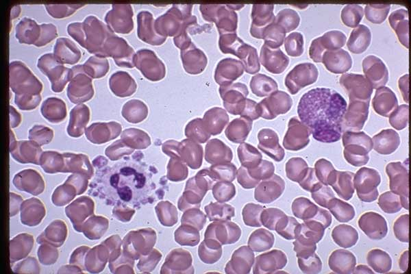 Neutrophils surrounded platelets, Platelet Satellitism attachment.php?s=cd4a2851cbe0bb17bc50fe84706af096&attachmentid=1439&d=1439747721