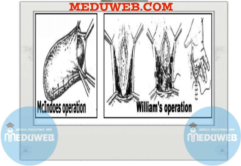 Mc Indoe's and William operations