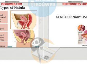 Genitourinary fistula