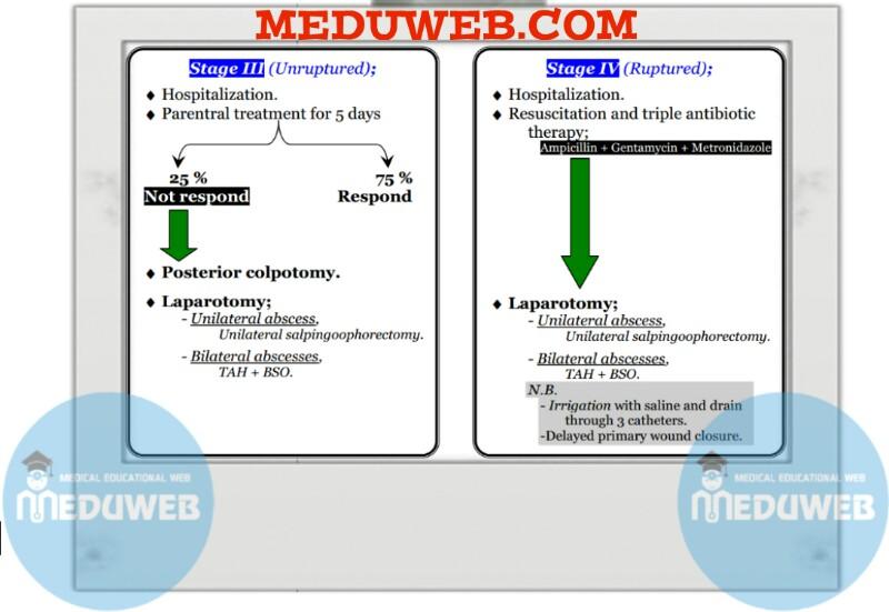 Stage III & stage IV Tubo- ovarian (Pelvic) Abscess