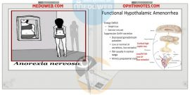 Hypothalamic amenorrhea