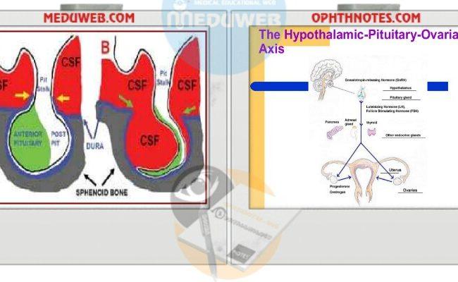 Pituitary amenorrhea