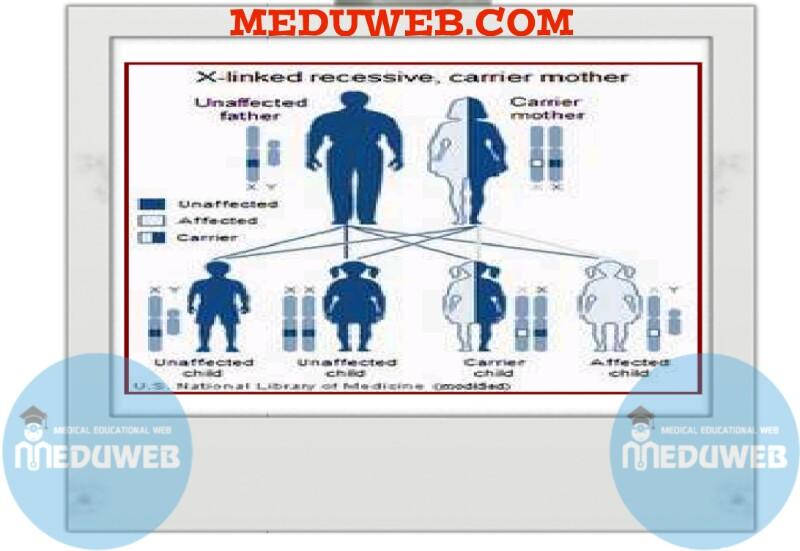 Chromosomal (genetic) amenorrhea