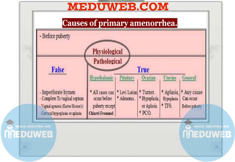 Causes of primary amenorrhea.
