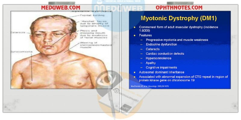 characteristics of congenital myotonic dystrophy Introduction myotonic dystrophy (dm) is a clinically and genetically heterogeneous disorder there are two major forms: dm1, for a century known as steinert disease dm2, recognized in 1994 as a milder version of dm1.