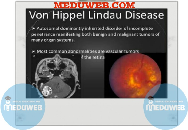 the symptoms and detection of von hippel lindau syndrome an inherited disease Management of von hippel-lindau disease: von hippel-lindau (vhl) disease is an autosomal domi-nantly inherited tumour predisposition syndrome with an.