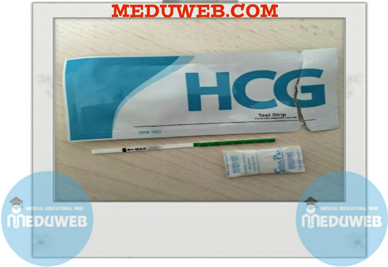 One Step Cassette Style HCG Urine Pregnancy Test
