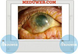 Atopic keratoconjunctivitis