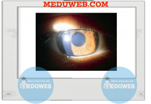Corneal signs aids to diagnosis capsule