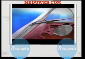 Non-penetrating glaucoma surgery (NPGS)