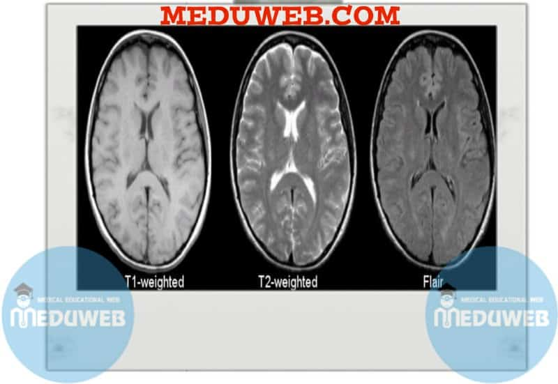 T-weighted MRI