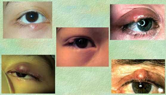 Eyelid swellings